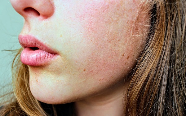 5 Skin Conditions You Should Know About